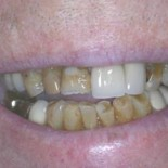 Dental Crowns before and after 1