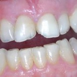 Dental Crowns before and after 2