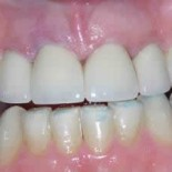 Dental Crowns before and after 2a