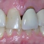 Dental Crowns before and after 3