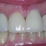 Dental Crowns before and after 3a