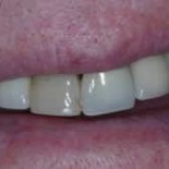 Dental Crowns before and after 4