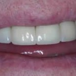 Dental Crowns before and after 4a