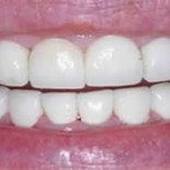 Dental Crowns before and after 5a