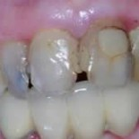 Dental Crowns before and after 6